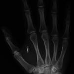 чип, вживлённый в руку